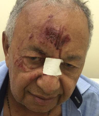 Dr. Pessoa é atropelado na zona rural de Teresina